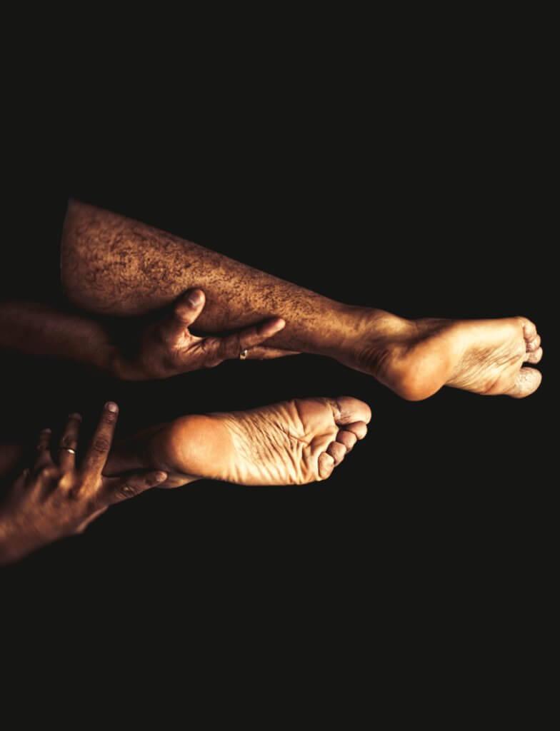 skin - itchy skin