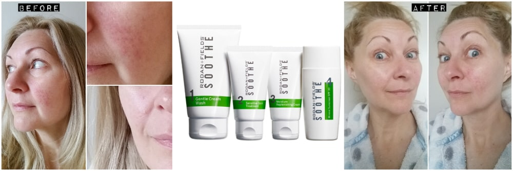 SOOTHE Kit for selfcare